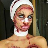 """Zum Fürchten: Model Sara Sampaio scherzt über ihren Beauty-Doc """"er ist der Beste""""."""