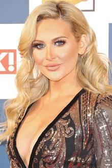 Mit Anfang 30 ist Stephanie Pratt kaum noch wiederzuerkennen. So wie das Reality-TV-Sternchen mittlerweile aussieht, hat sie scheinbar einfach alles machen lassen, Nase, Brüste, Botox, Lippen... Barbie lässt grüßen!