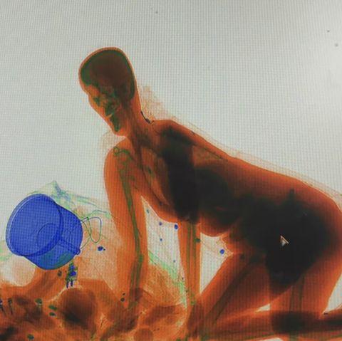 Diese Aufnahme entstand, als die Frau durch das Röntgen-Gert kroch.