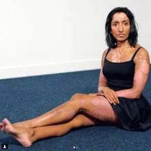 Bilder auf denen Schuppenflechte zu sehen ist, werden auf Social Media vermehrt einfach gelöscht.