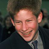 1999  Als Teenager muss Prinz Harry eine feste Zahnspange tragen - mit Erfolg. Heute sind seine Zähne absolut gerade und lückenlos.