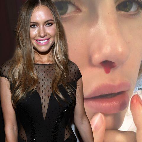 Alena Fritz zeigt ihre blutige Nase auf Instagram