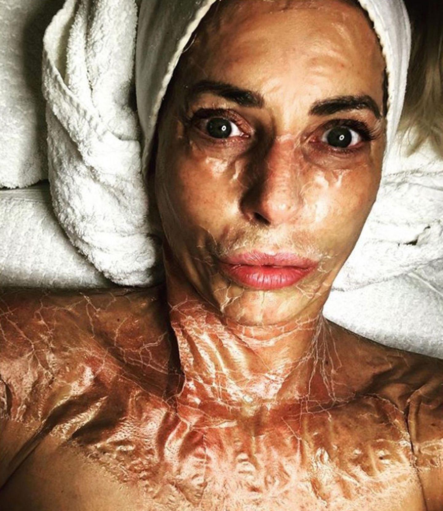 Giulia Siegel sagt unter diesem Instagram-Foto selbst, dass sie alles für ihre Haut tut. Sogar wenn die Beauty-Maske beim Trocknen lustige Falten schlägt.