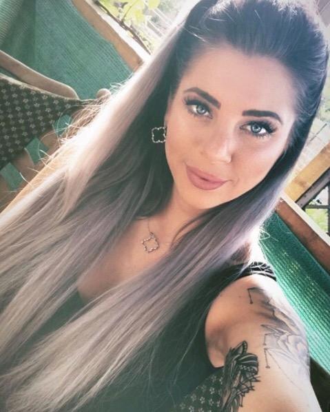 Jenny Frankhauser: Auch ihre Arme sind von dem Lipödem betroffen