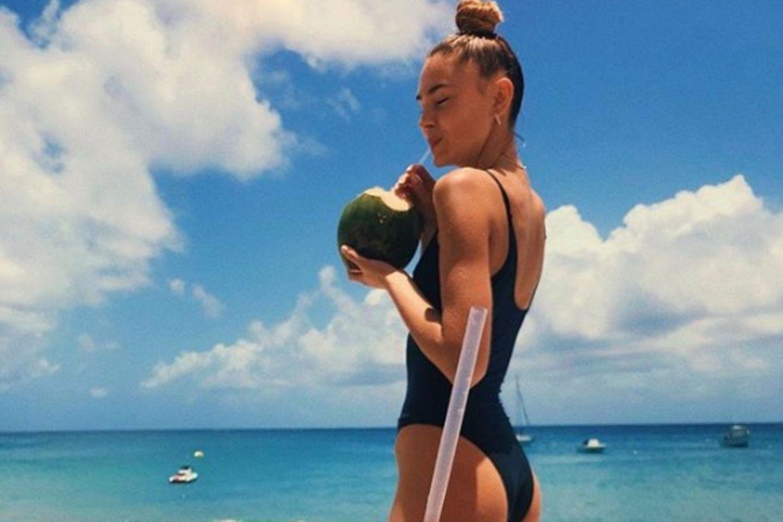Stefanie Giesinger hat die Kokosnuss auch schon für sich entdeckt und schlürft daraus das erfrischende Kokoswasser.
