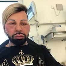 Mit einem geschwollenen Gesicht schaut Harald Glöööckler aus dem Krankenhaus in die Kamera. Der Designer hat laut eigenen Angaben einen Allergie-Schock erlitten, leidet zusätzlich unter Atemnot und Übelkeit. Panik steigt in dem beliebten Modemacher auf, sodass er sich lieber im Krankenhaus behandeln lassen möchte.