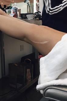 In 2015 hatte Kylie ihre Narbe, die sie seit ihrer Kindheit hat, schon einmal auf Instagram gezeigt, danach aber schnell wieder versteckt. Umso schöner, dass sie drei Jahre später wieder zu diesemeinzigartigen Mal stehen kann.