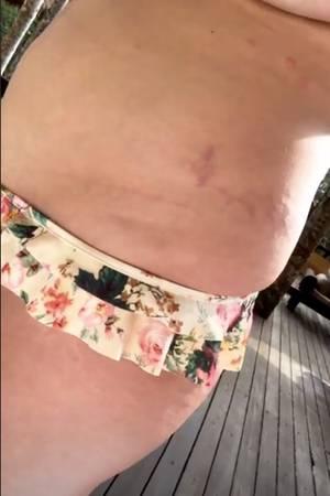 Chrissy Teigen zeigt ihre Schwangerschaftsstreifen.