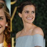 Emma Watsons Zähne strahlen nach einer Bleaching-Behandlung schwanenweiß. Auch den schiefen Eckzahn hat sich die Schauspielerin richten lassen.