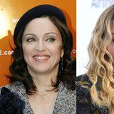 Madonnas Zahnlücke ist lange Zeit ihr Markenzeichen. Trotzdem lässt die Pop-Diva sich diese ein bisschen richten.