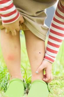 Mückenstiche lösen einen fiesen Juckreiz aus.