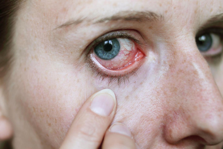 Verletztes Auge (Symbolbild)