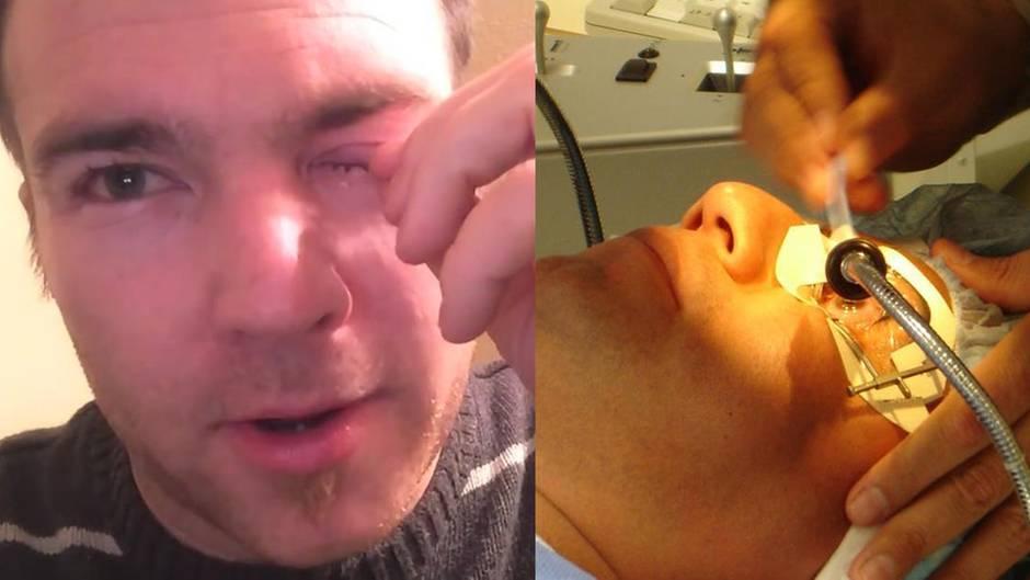 Augeninfektion