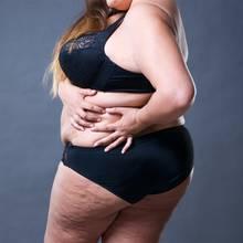 Frau mit Übergewicht (Symbolbild)