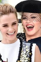 Zähne der Stars
