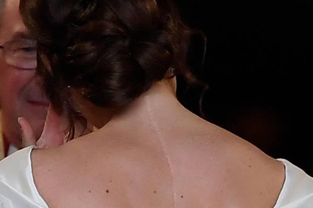 Prinzessin Eugenie Das Steckt Hinter Ihrer Narbe Galade