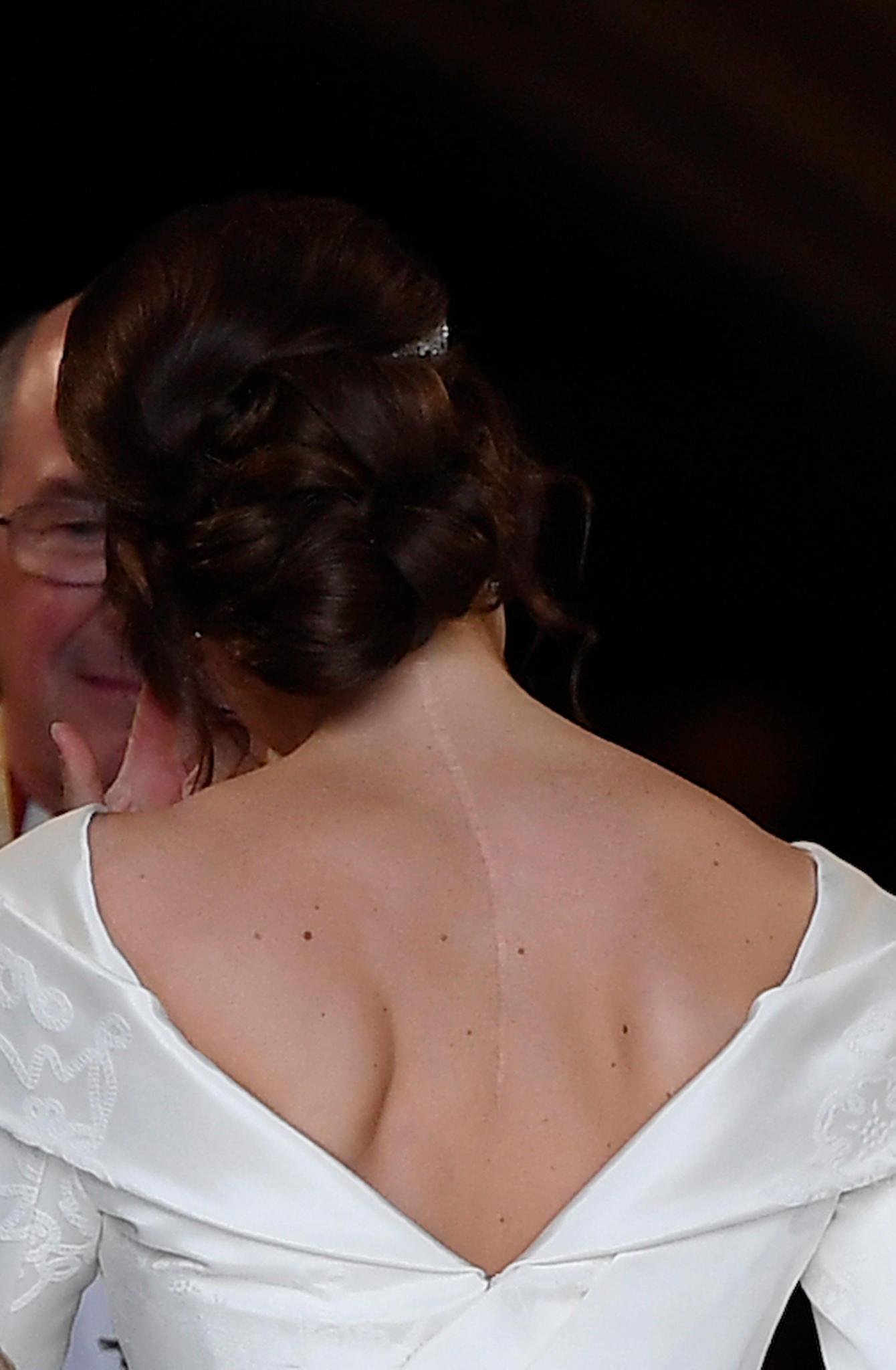Die Narbe von Prinzessin Eugenie