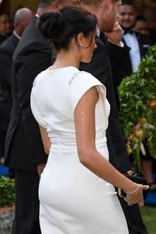 Tatsächlich glänzt Herzogin Meghan am Oberarm - sehr unregelmäßig. Es sieht so aus als hätte sie ihre glänzende Body-Lotion nicht ganz gleichmäßig verteilt oder ein wenig zu viel Produkt verwendet.