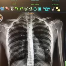 Röntgenbild offenbart Geheimnis