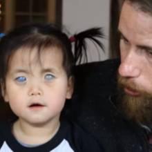 Glückliches Ende: Blindes Mädchen wird von liebevoller Familie adoptiert