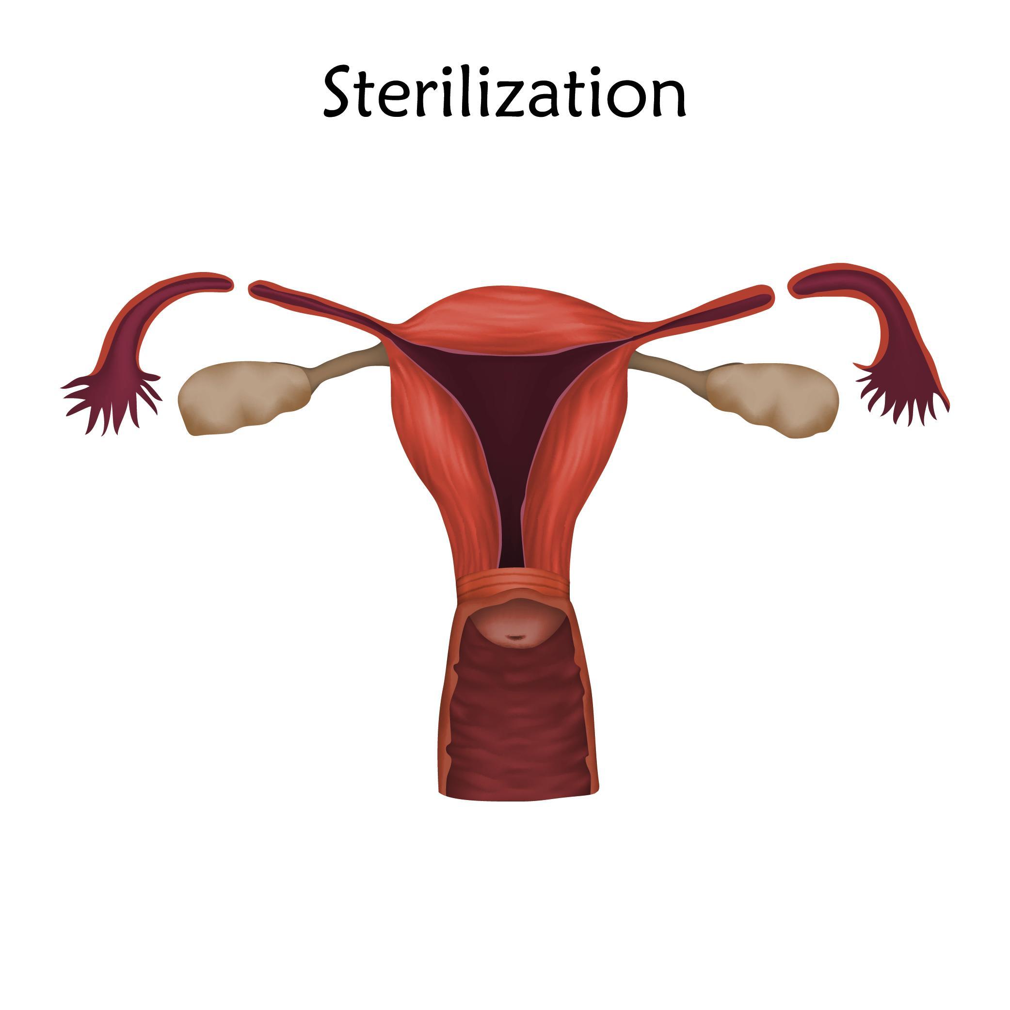 Bei der Sterilisation werden die Eileiter der Frau abgetrennt.