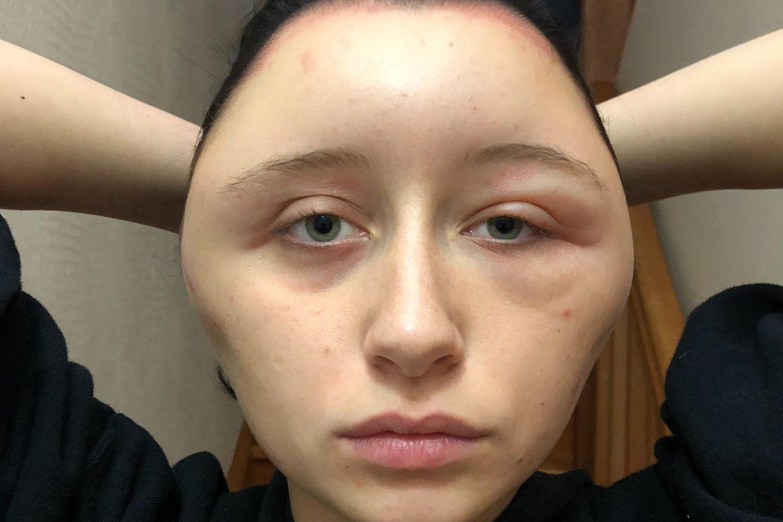 Estelle erleidet schlimmen Allergie-Schock, nachdem sie sich die Haare gefärbt hat.