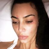 """Doch auch Kim bleibt von Hautproblemen nicht verschont. Die roten Flecken in ihrem Gesicht sind Schuppenflechte. Der Reality-Star kämpft seit Jahren gegen die unheilbare Krankheit. """"Schuppenflechte am Morgen"""", schreibt Kim zu diesem Selfie."""