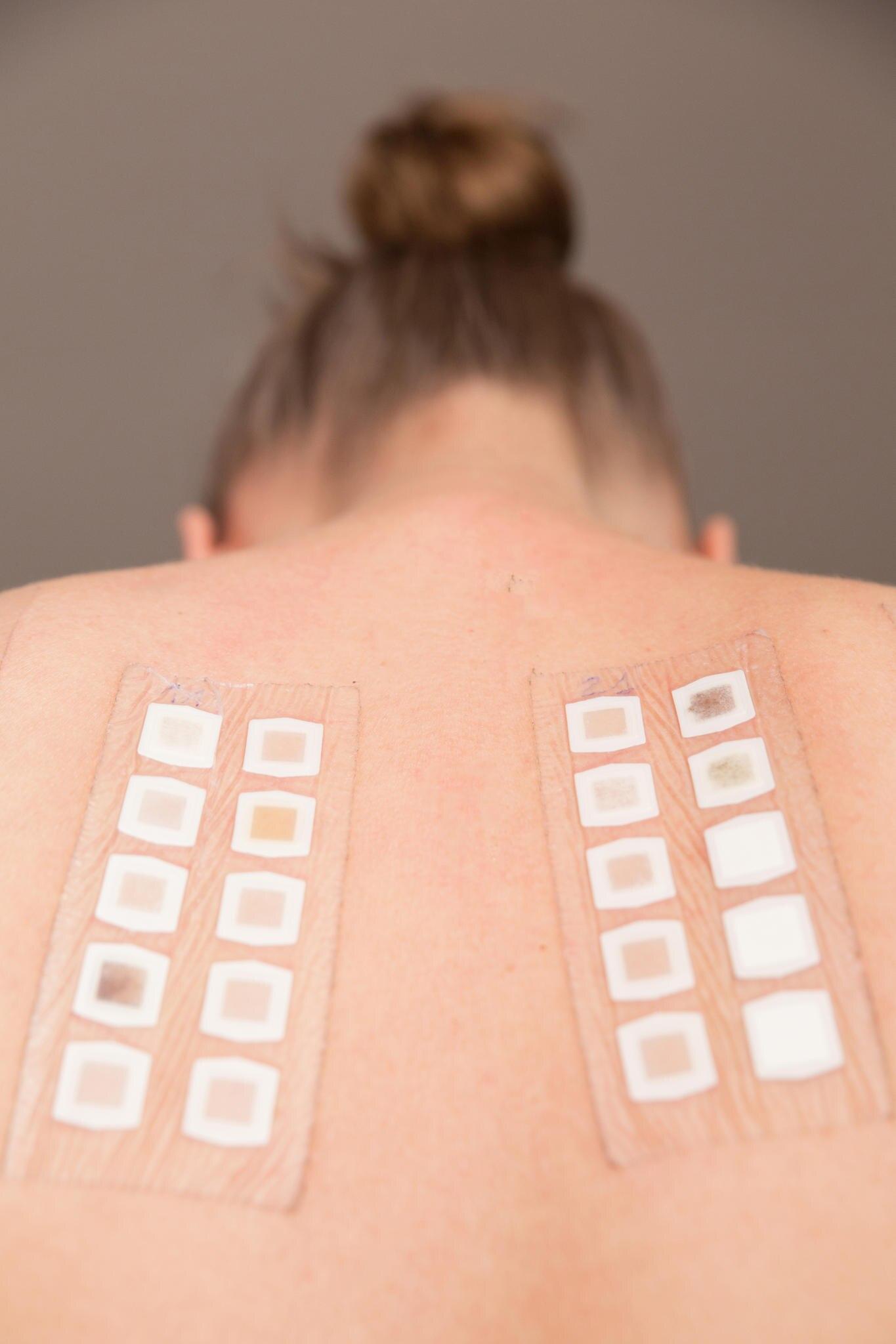Bei dem Pflastertest trägt der Hautarzt mögliche Allergene auf den Rücken auf