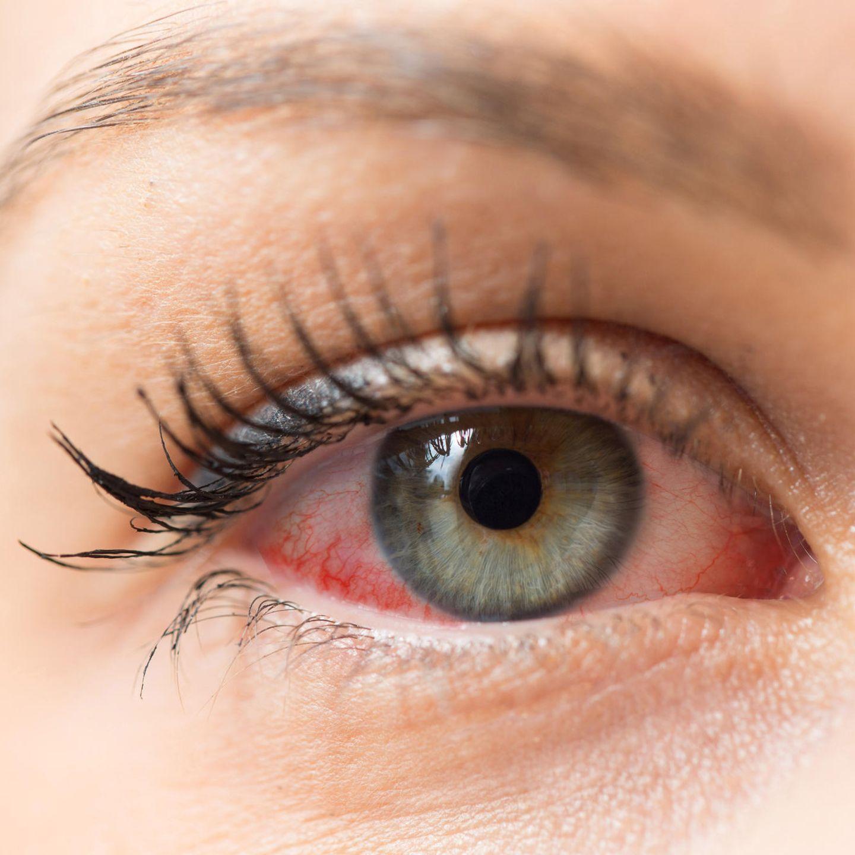 Eine allergische Reaktion kann sich durch gerötete und tränende Augen zeigen