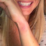 """Bar Refaeli hat lange gezögert, was Tätowierungen angeht. Vor ein paar Jahren entschied sie sich dann für einen kleinen Schmetterling.""""Ich habe es endlich getan.Mein erstes und letztes Tattoo!"""", so ihre Worte auf Instagram.Das White Ink Tattoo war lange ein Trend für Exoten. Nur kristallisiert sich heraus, dass es eigentlich das perfekte Anfänger-Tattoo ist."""