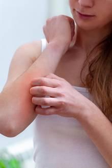 Unangenehm: Wer unter einer Mückenstich-Allergie leidet, hat nach einem Angriff der Beißer mit starkem Juckreiz und großflächigen Schwellungen zu kämpfen.