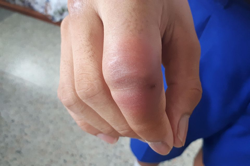 Fuß mückenstich dicker nach Mückenstich schwillt