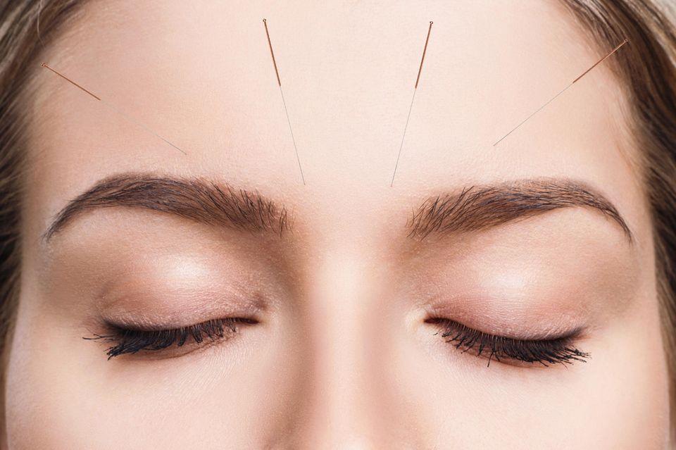 Kann mit Akupunktur eine Pollenallergie behandelt werden?