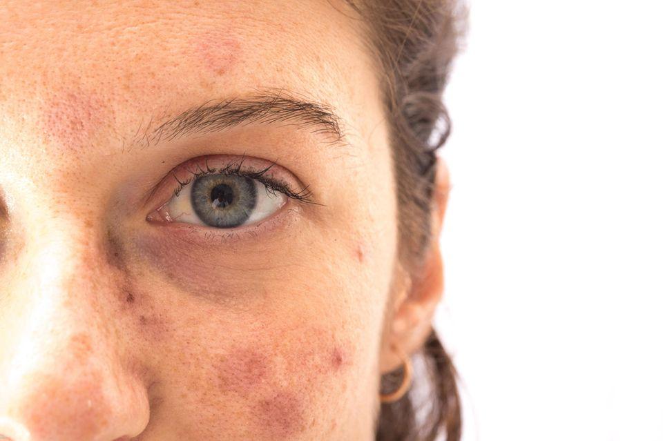 Sonnenallergie im Gesicht