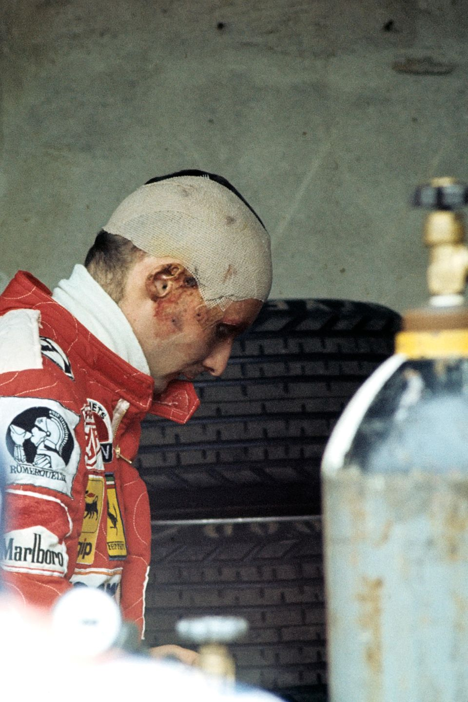 Nur 42 Tage nach dem Crash fährt der schwer gezeichnete Lauda schon wieder sein nächstes Rennen: den Großen Preis von Italien.