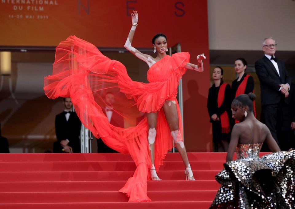 Wow: Model Winnie Harlow ist auf dem Roten Teppich ein echter Blickfang.