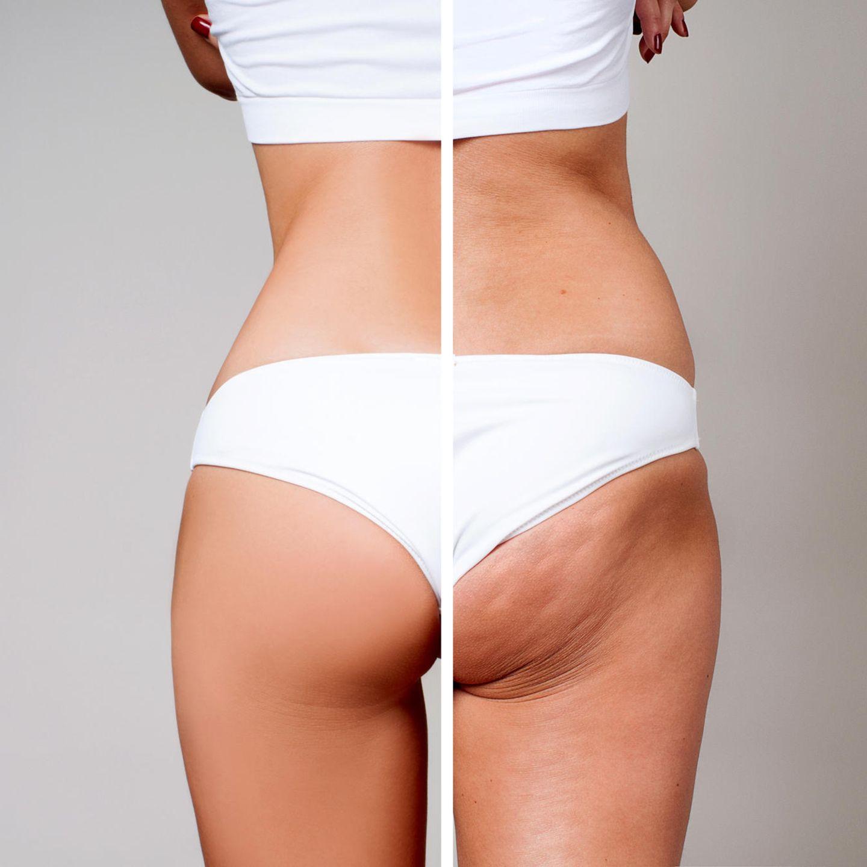 Cellulite – bis zu 90 Prozent derFrauen betrifft es