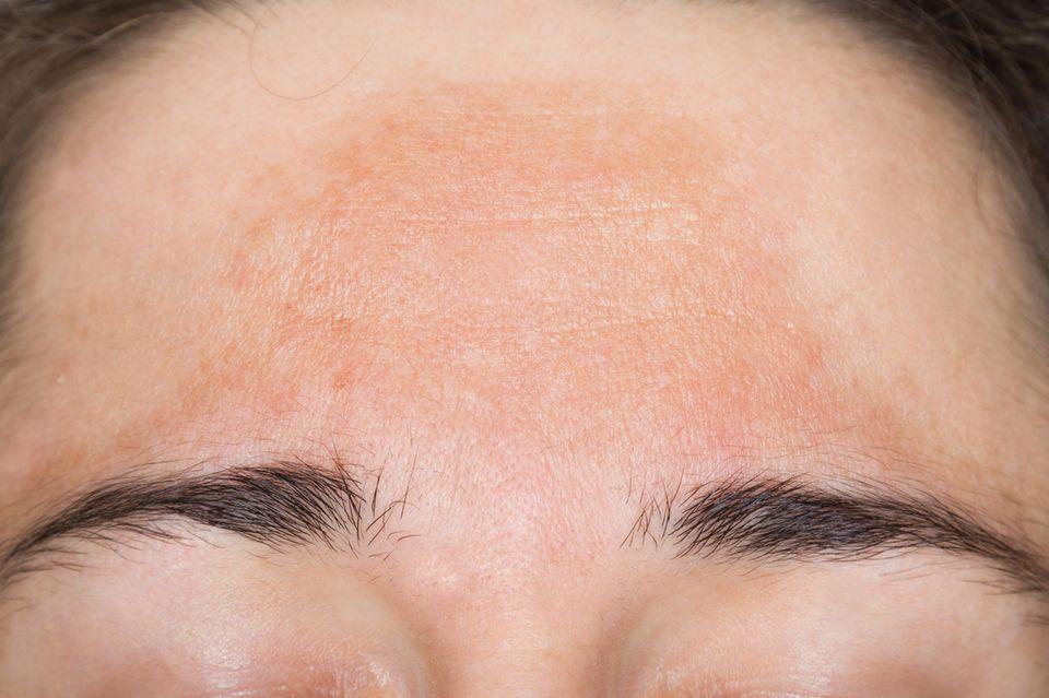 DiePigmentfleckenbeim Melasma treten typischerweise an der Stirn auf