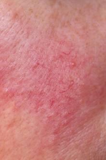 Das Anfangsstadium einer Rosacea: Die Blutgefäße sind sichtbar erweitert und einzelne Äderchen treten hervor.