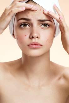 Was hilft gegen Pickel?, Pickel, Akne, Pflegetipps, Hautpflege