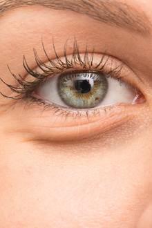 Tränensäcke und geschwollene Augen werden oft durchStress und Schlafmangel verursacht.