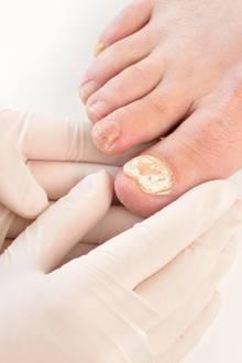 Hautpilz muss behandelt werden: Bleibt ein Fuß- oder Handpilz unbehandelt, kann es zusätzlich zu Nagelpilz kommen.