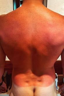 Brathähnchen-Alarm! Chris Pratt hat sichin seinen Flitterwochenein wenig zu knusprig brutzeln lassen, nutzt die Gelegenheit aber, seine Instagram-Fans mit der Ansicht seiner halben Rückseite zu erfreuen.