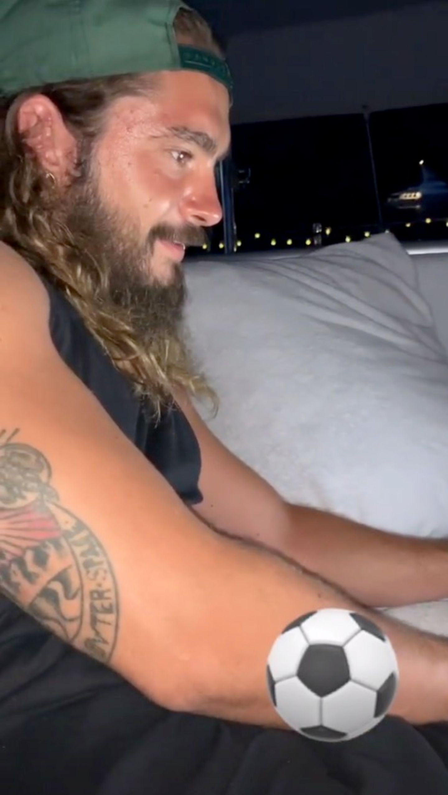 Ganz anders sieht Toms Hautbild nach der Hochzeit aus: Sein Teint wirkt glänzend und kleine Pickel sind an seiner Schläfe zu sehen.