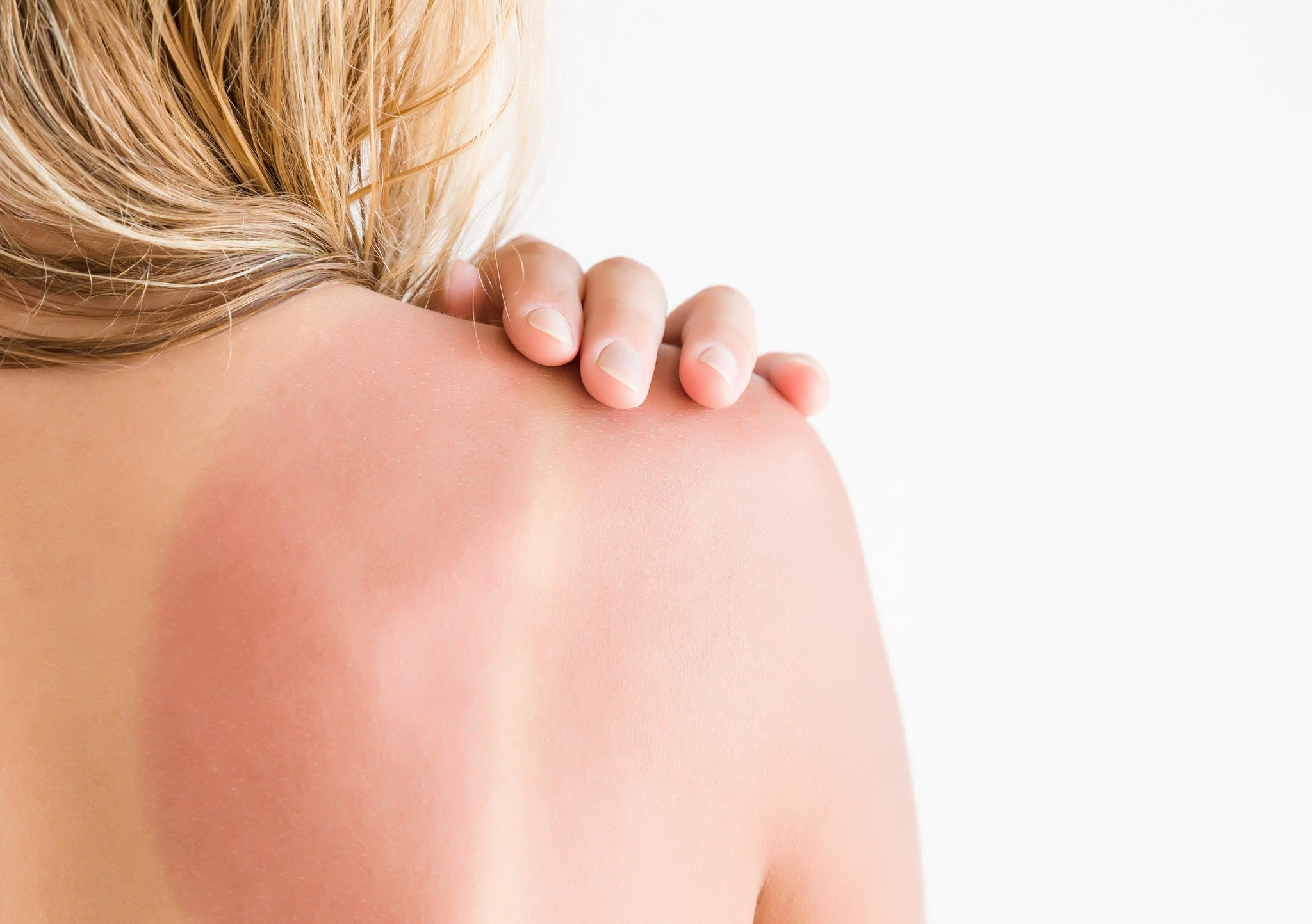 Sonnenbrand: Frau mit Sonnenbrand auf der Schulter