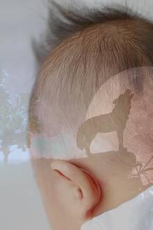 Werwolf-Syndrom: Inzwischen sollen 17 Kinder betroffen sein