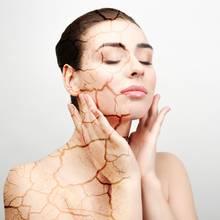 Trockene Haut kann unangenehm sein.