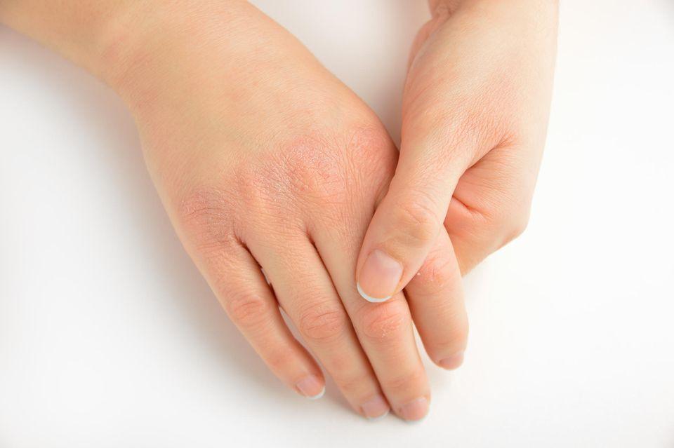 Trockene Haut macht sich oftmals an den Händen bemerkbar.