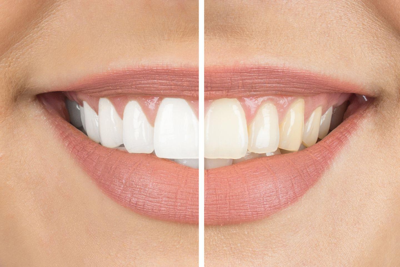 Onuge Whitestrips, Vorher-Nachher-Bild, Frau, Zähne, Lächeln, links weiß, rechts gelb