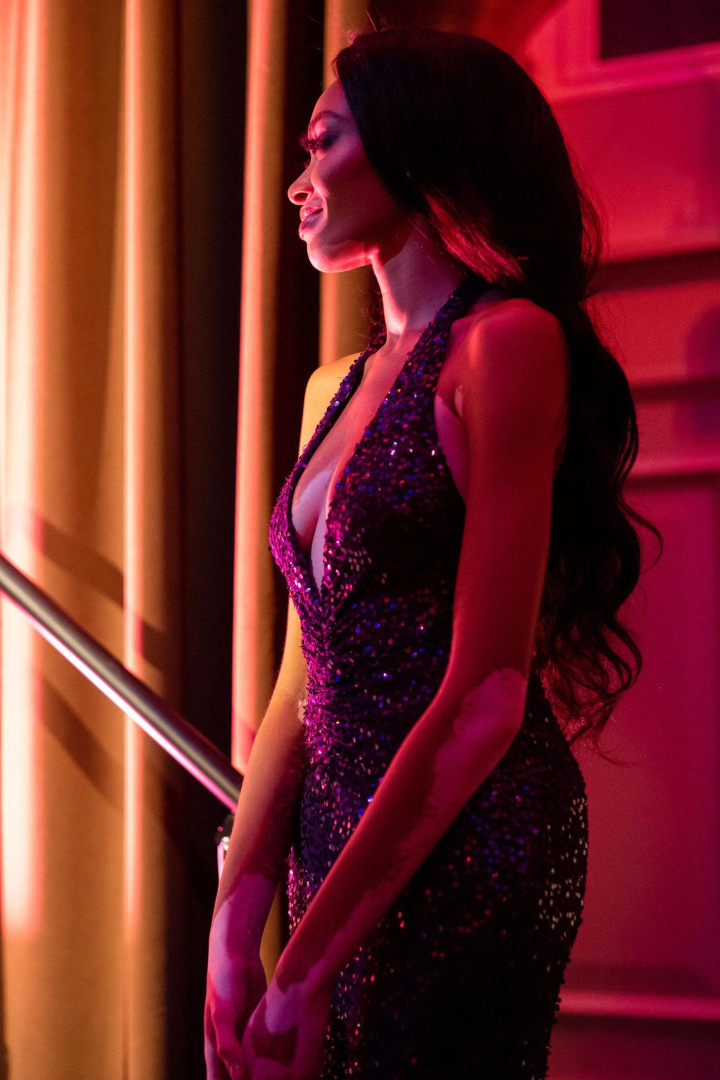 """21. Oktober 2019  Model Winnie Harlow wartet bei den """"Golden Heart Awards"""" hinter der Bühne auf ihren Auftritt. Der Award zeichnet prominente Persönlichkeiten für ihr soziales Engagement und Dienst an der Öffentlichkeit aus."""